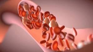 Los anticuerpos monoclonales para el cáncer también podrían curar la aterosclerosis