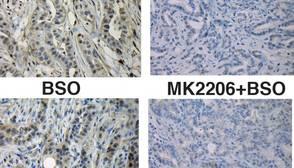 Reducir los antioxidantes en células tumorales pancreáticas permitirá controlar el cáncer