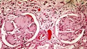 Investigadores españoles diseñan un compuesto para prevenir el daño renal por la diabetes