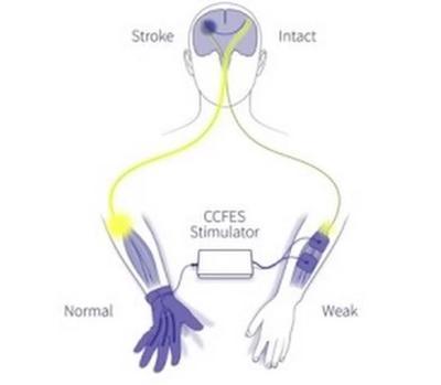 Terapia de estimulación manual controlada con guante