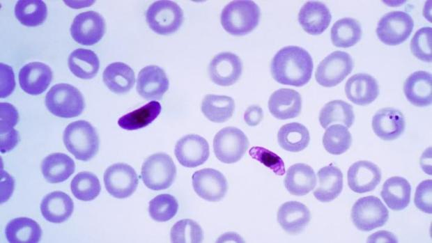 'Plasmodium falciparum'