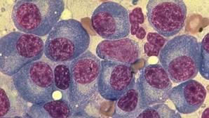 PharmaMar presenta ante la EMA la solicitud de comercialización de 'Aplidin' para mieloma múltiple