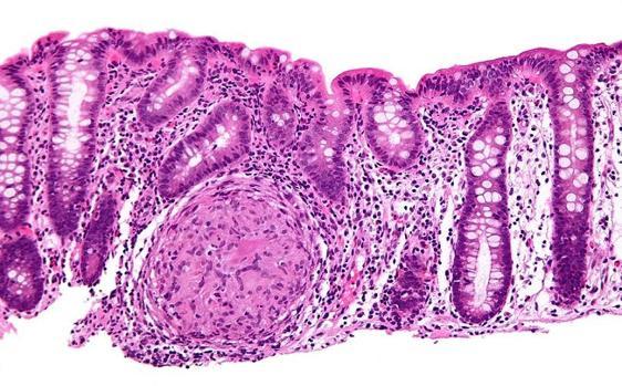 Biopsia del colon de un paciente con enfermedad de Crohn