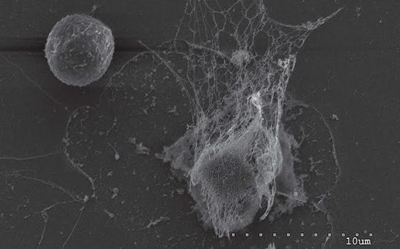Célula tumoral y neutrófilo con NET