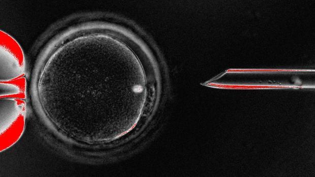 Ovocito no fertilizado humano (óvulo) con su material genético nuclear (huso) mostrado como un punto brillante