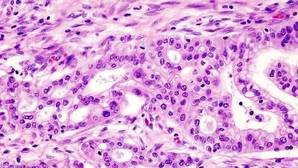 Adenocarcinoma ductal de páncreas