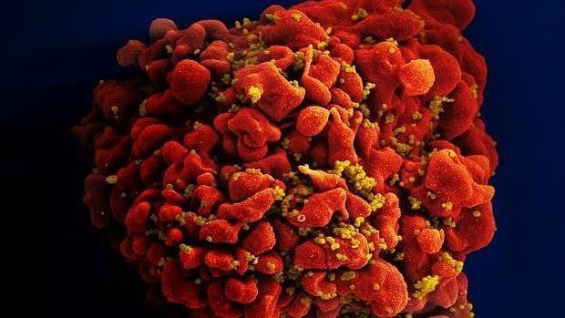 Célula infectada por el VIH