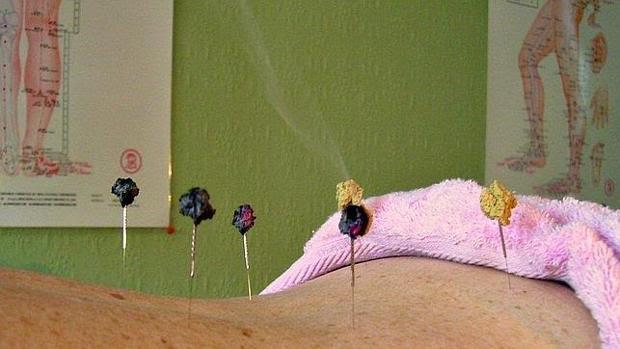 Sesión de acupuntura