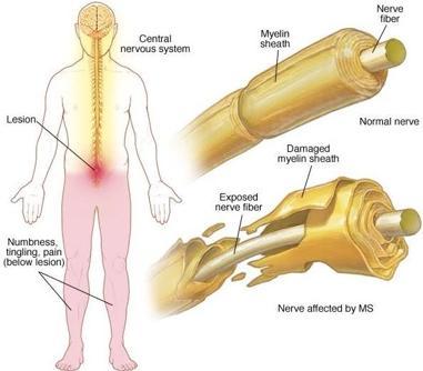 Pérdida de mielina en la esclerosis múltiple