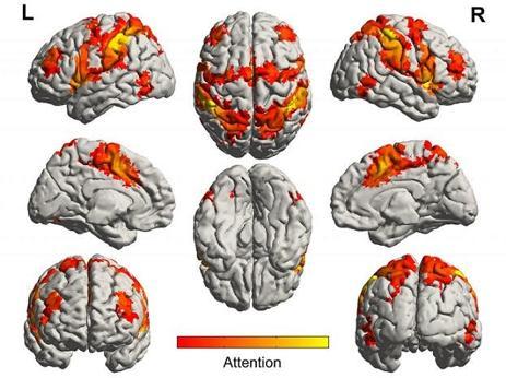 Diagrama de redes neuronales implicadas en el procesamiento de la atención
