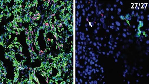 Las células cancerígenas expresan CK19 (en rojo) en el páncreas (izquierda) pero no en el hígado (derecha)
