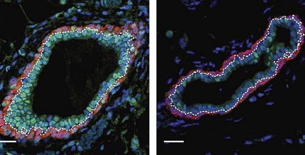 Reducción de células progenitoras luminales (en verde) tras la administración de decitabina (izquierda)