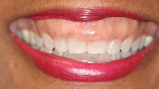 Salud dental e hipertensión relacionadas