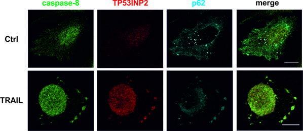 Diferentes localizaciones de las proteínas involucradas en apoptosis en condiciones basales (Ctrl) y con inducción de los receptores de muerte celular con TRAIL