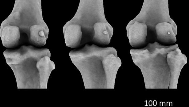 Fabella grande (izquierda), mediana (centro) y pequeña (derecha) en las rodillas derechas de tres mujeres