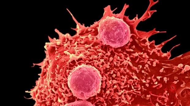 La hemofilia A es un grave trastorno genético