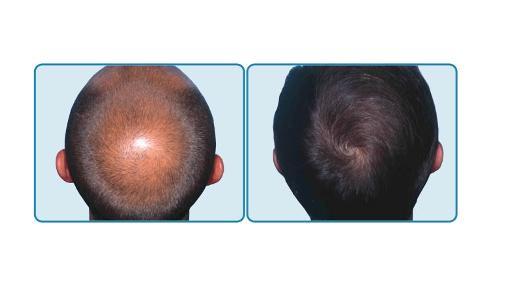 Los cabellos el tratamiento a los hombres