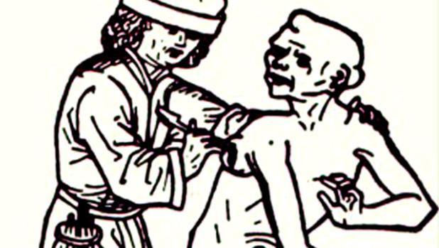 Grabado en el que se muestra a un sangrador atendiendo a un apestado