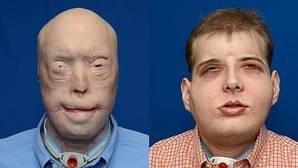 Un bombero desfigurado se somete al trasplante más completo de cara
