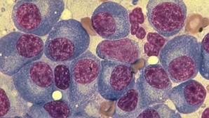 Aplidin, la última esperanza contra el mieloma múltiple desarrollada por PharmaMar