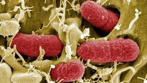 Detectan el primer caso en EE.UU. de una bacteria resistente a todos los antibióticos