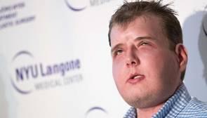 La nueva vida de Patrick Hardison, el hombre sin rostro que se sometió a un trasplante total de cara