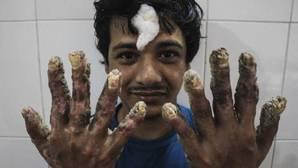 El «hombre árbol» de Bangladesh se siente «genial» con sus nuevas manos