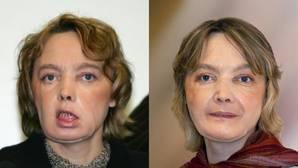 Muere a los 49 años la primera mujer trasplantada de cara del mundo
