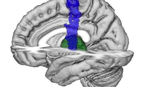 Imagen de cerebro que muestra la ubicación del tálamo (verde) y corteza motora primaria (azul)