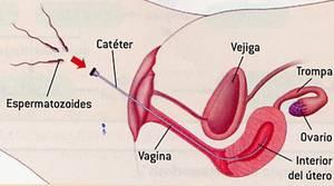 ¿Cómo se hace una inseminación casera?