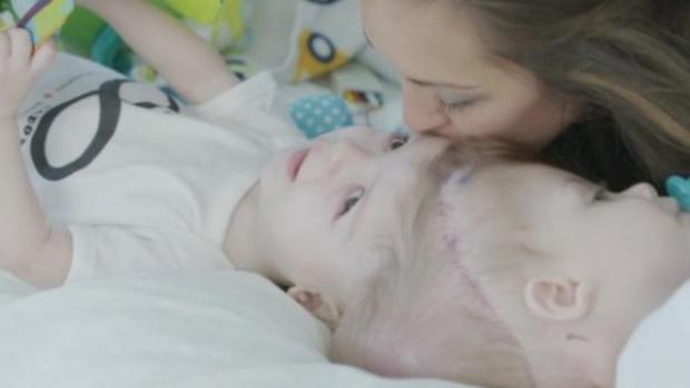 Imagen de los dos gemelos siameses que han sido separados esta madrugada mediante cirugí