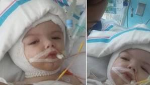 Los gemelos siameses separados con éxito abren los ojos por primera vez tras la intervención