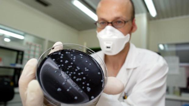 Un investigador muestra un cultivo de legionela