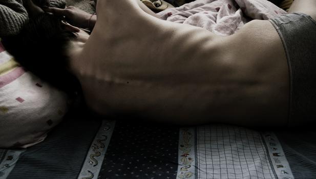 Electrodos contra la anorexia