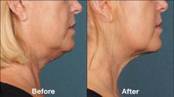 Antes y después del tratamiento con Belkyra