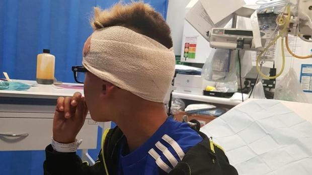 Romeo Smith, un niño británico de nueve años con autismo, ha sido víctima de una brutal agresión por parte de otros niños en la ciudad de Mansfield