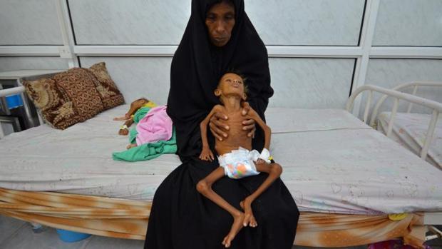 Una madre con su hijo en la unidad de cuidados intensivos por malnutrición en Yemen