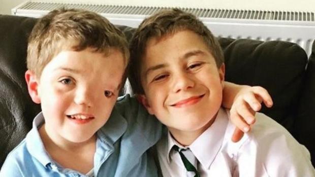 Harry y su hermano gemelo