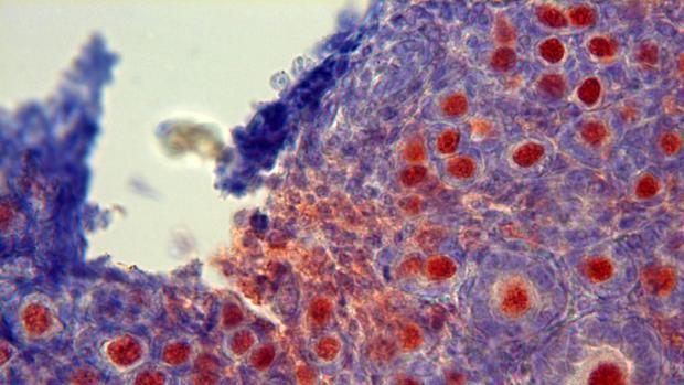 Tejido ovárico, al microscopio